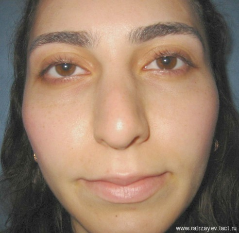 Полипы виды фото симптомы причины лечение и удаление