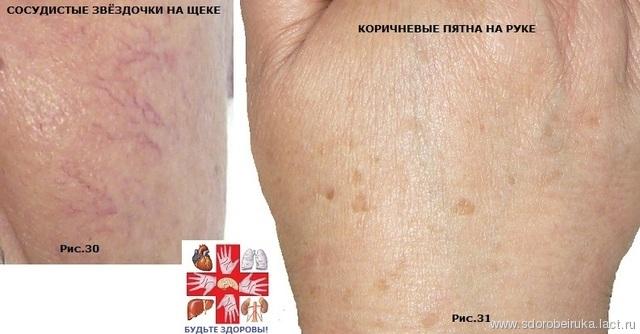 Пересадка волос на лысине в украине стоимость